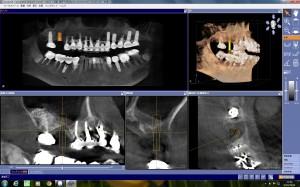 土器術前CT